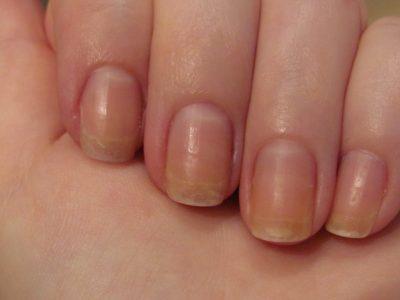 Ce reprezintă semnele de pe unghii. Bolile pe care le ascund petele și dungile albe
